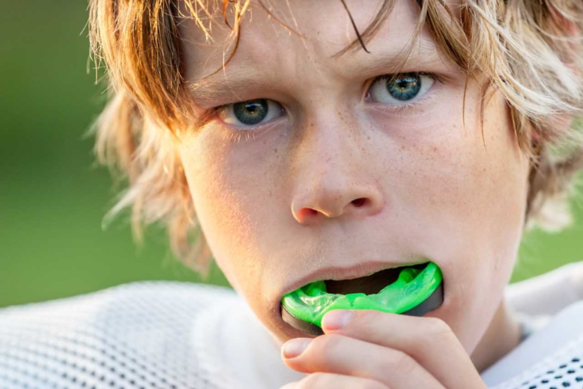Guide on Mouth Guards