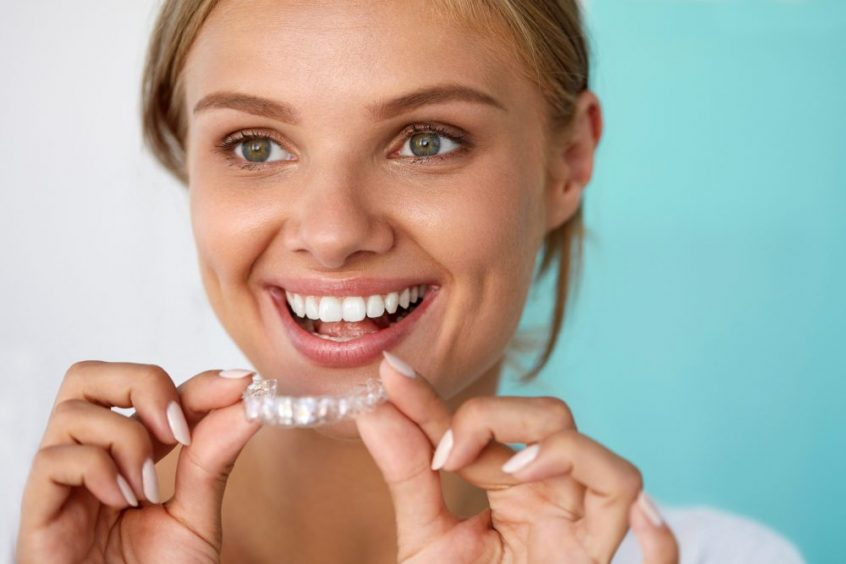South Airdrie Smiles Invisalign – Invisible braces option for straighter teeth