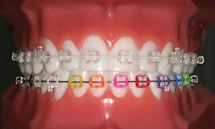 Dental Braces for Child