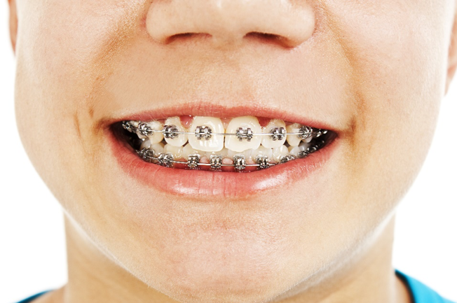 What You Need To Know About Caring for Your Child's Braces