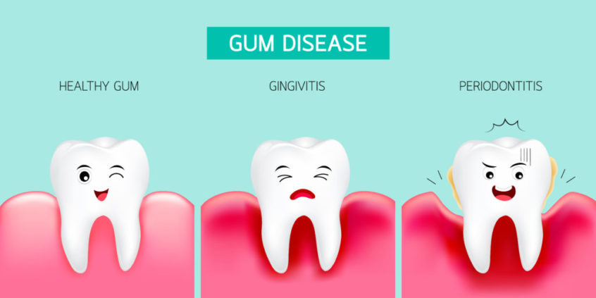 Gum Diseases Treatment in Airdrie