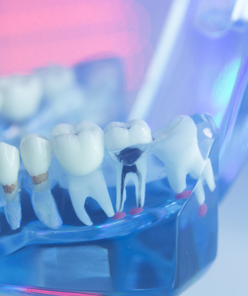 Why-Do-I-Need-a-Root-Canal