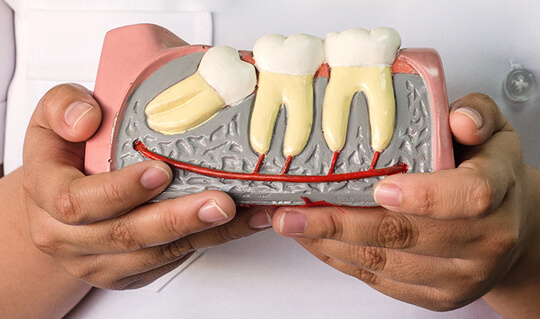 wisdom_teeth_removal_image
